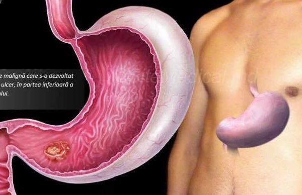Cauzele de cancer gastric si ce ar trebui sa facem pentru un diagnostic rapid si corect!